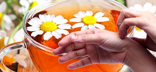 Camomile Tea can help with Skin Conditions